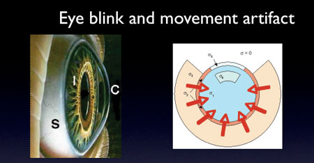 Eye blink diagram.