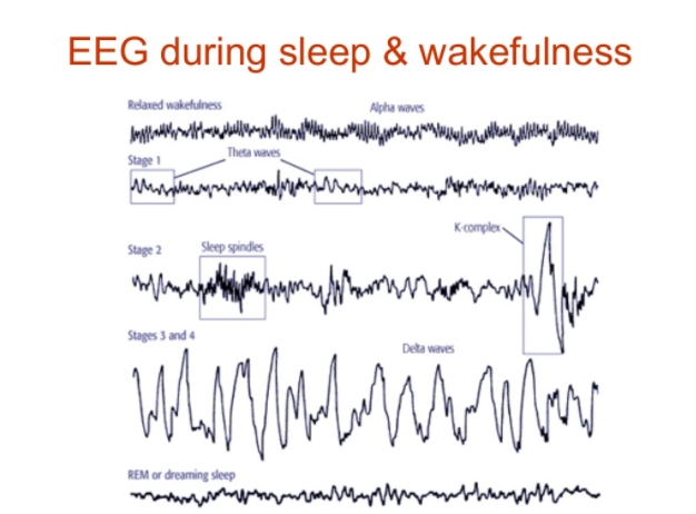 An image illustrating a variety of EEG signals from a variety of states of sleep and wakefulness.