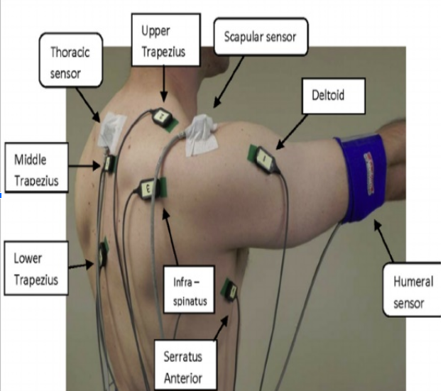 An image illustrating specific EMG electrode locations on a adult human male.