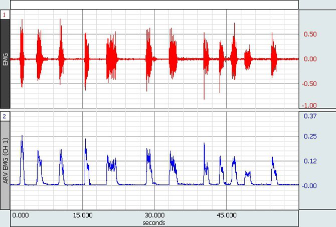 An image illustrating both raw and rectified EMG activity signals.